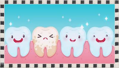 cara merontokan karang gigi karang gigi kuning karang gigi lepas sendiri biaya pembersihan karang gigi obat karang gigi di apotik