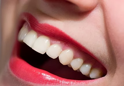 gigi sehat