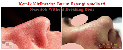 Rhinoplasty without breaking nasal bones - Nose job without breaking bone - Rhinoplasty without breaking bone - Nasal aesthetic surgery without breaking the nasal bone - Rhinoplasty in İstanbul, Turkey - Nose job in İstanbul, Turkey - Special offer for rhinoplasty without bone broken in İstanbul, Turkey