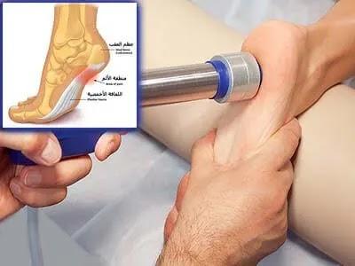 التهاب اللفافة الاخمصية | الاسباب والعلاج