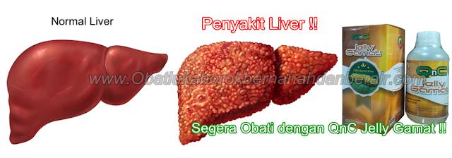 Cara Ampuh Menyembuhkan Liver Secara Total