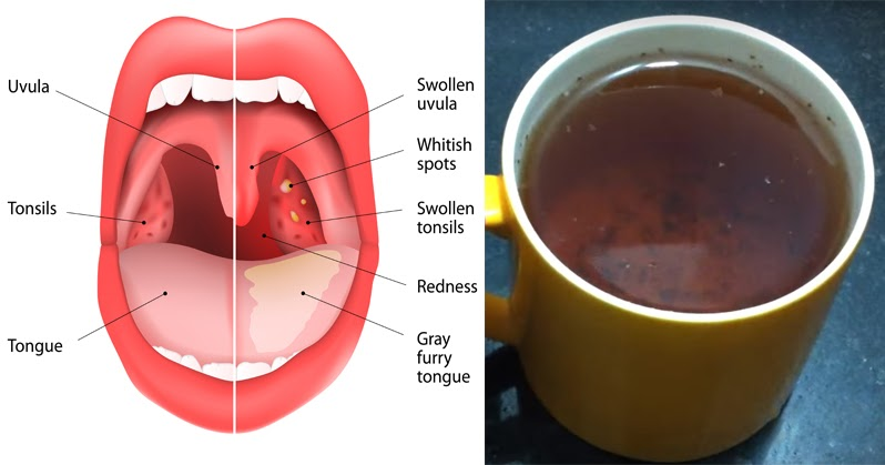 Oregano Tea May Combat Strep Throat, Flu & Sinus Infections