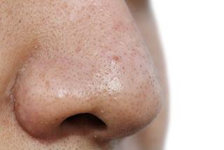 masques de visage pour enlever les points noirs