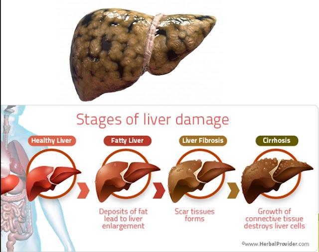 Fatty Liver, Nonalcoholic fatty liver disease Bagaimana Penyakit Fatty Liver Terjadi Diet Bagi Penyakit Hati Berlemak Hati Berlemak 3 Cara untuk Memulihkan Hati Berlemak ke Kondisi Semula Bahaya hati berlemak Rawatan Atasi Masalah Hati Berlemak Fatty Liver Cara Atasi Masalah Hati Berlemak Atau Fatty Liver Secara Semulajadi Tips Atasi Hati Berlemak / Fatty Liver Rawatan Atasi Masalah Hati Berlemak Fatty Liver Images for hati berlemak dan shaklee Langkah Mudah Atasi Penyakit Hati Berlemak atau Fatty Liver  Cara Atasi Masalah Hati Berlemak Atau Fatty Liver Secara Semulajadi shaklee dan hati berlemak hati berlemak ikhtiar dengna shaklee