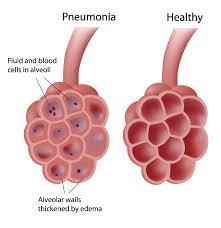Cara Menangani Pneumonia (Radang Paru-Paru)