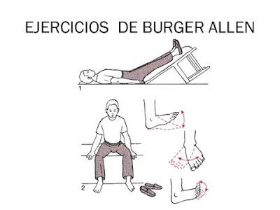 Ejercicios de Buerguer Allen para que se utilizan?