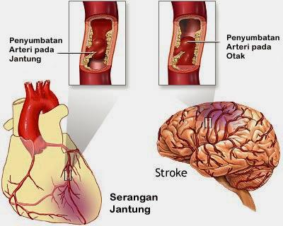 arteri tersumbat menyebabkan sakit jantung