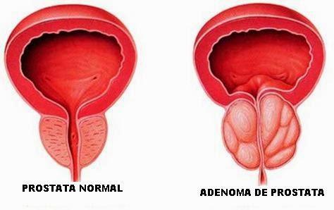 adenoma de próstata grado 2 eso