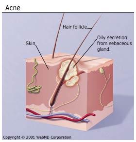 apache mesa pop up wiring diagram pimple pop diagram