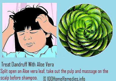 Treat Dandruff with Aloe Vera