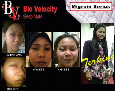 BIO VELOCITY SLEEP MATE HILANGKAN MIGRAIN