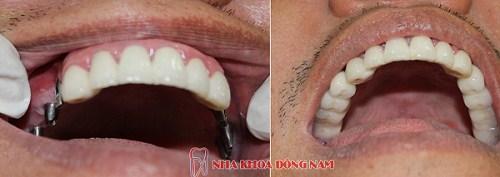 dịch vụ Trồng Cấy Ghép Implant -5