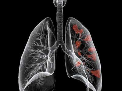 penyebab kanker paru-paru, gejala kanker paru-paru, cara mengobati kanker paru-paru