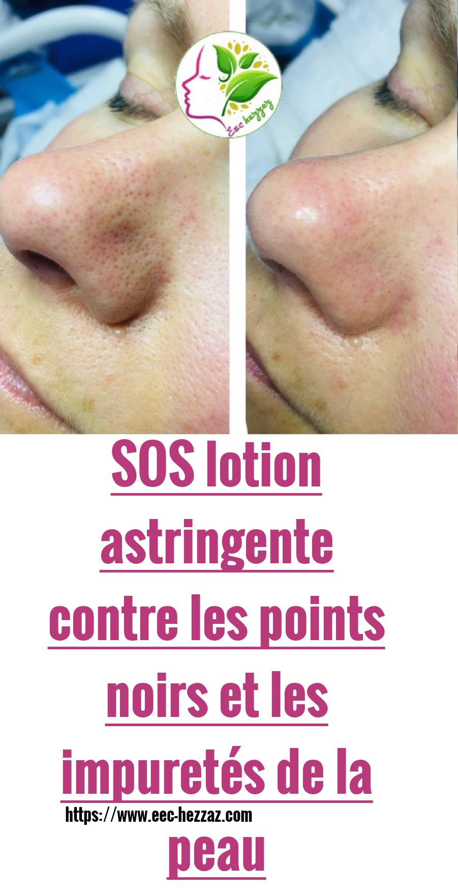 SOS lotion astringente contre les points noirs et les impuretés de la peau