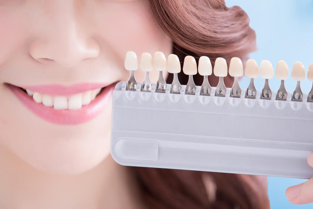 Biaya pemutihan gigi