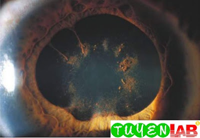 This patient with uveitis had posterior synechiae that are attachments of the iris to the anterior capsule of the lens