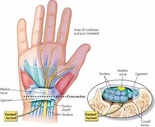 Karpal Tünel Sendromundan korunmak için pratik öneri Karpal Tünel Carpal Tunnel Sendromu Nedir? Klavye ve farenin yaptığı hastalık Dünya Bülteni El ve Bileklerini Sık Kullananlar Dikkat! El Bilek Kanalı Hastalığı Karpal Tünel Sendromu Karpal Tünel Sendromu Nedir ve Nasıl Tedavi Edilir? insan Kaynakları Haberleri Bilek Kanalı Hastalığı Uyarısı Hamarat Kadınların Elleri Hastalık Riski Taşıyor Primer Karpal Tünel Sendromunda Lokal Steroid Tedavi Sonuçları