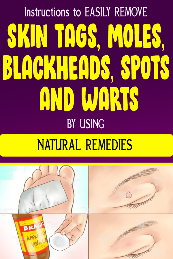Instructions to EASILY REMOVE SKIN TAGS, MOLES, BLACKHEADS, SPOTS AND WARTS BY USING NATURAL REMEDIES