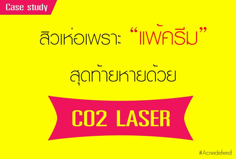 รักษาสิวอุดตันด้วย CO2 เลเซอร์