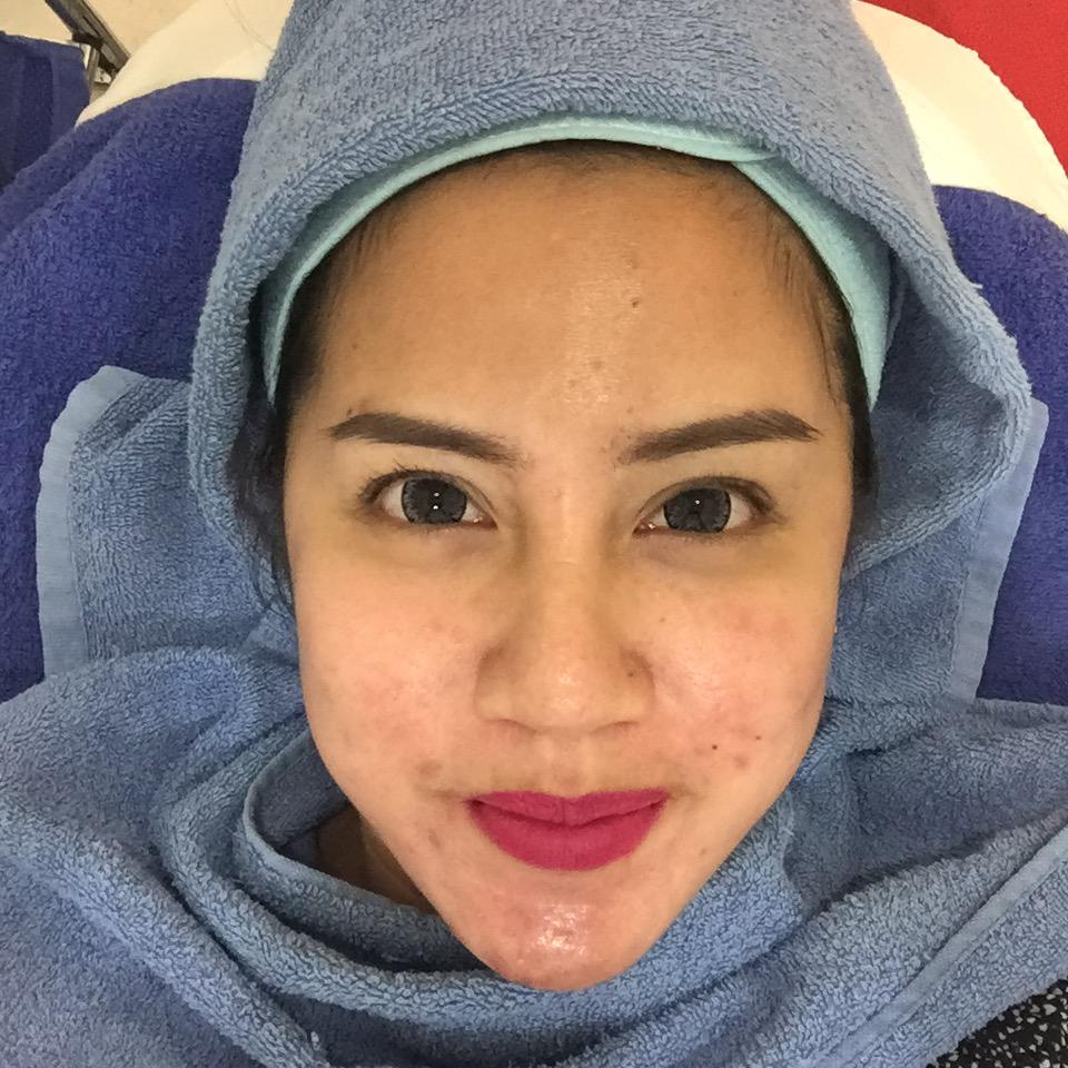 Frieshentia's World..: Kunjungan Ke 2 Bamed Skin Care