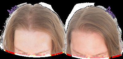 Antes e Depois - Resultado shampoo Natural Blend Crescimento Capilar Abella Resultado