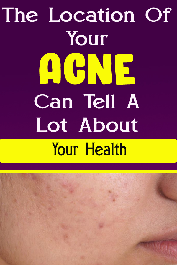 The Location Of Your Acne Can Tell A Lot About Your Health