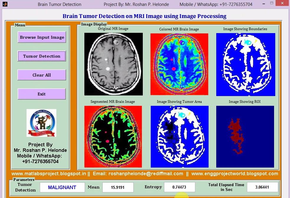 Matlab Code for Brain Tumor Detection on MRI Images Using Image