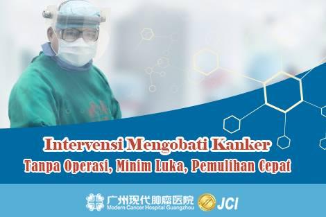 Pengobatan Kanker: Terapi Intervensi Mengobati Kanker