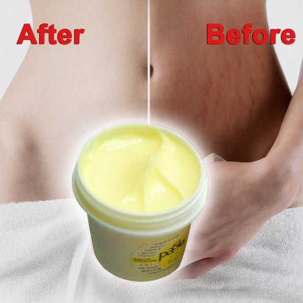 how to get rid of stretch marks in 3 days