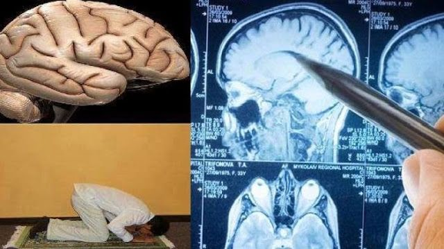 Ternyata Otak Manusia Berbentuk Orang Sedang Sujud, Penjelasan Ini Buat Kamu Semakin Rajin Shalat