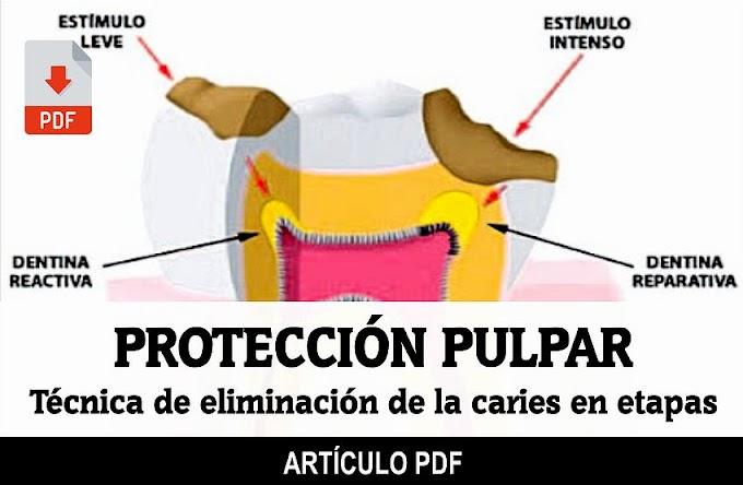 PDF: Protección Pulpar mediante la técnica de eliminación de la Caries en etapas