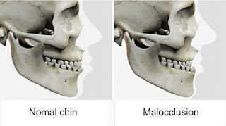 normal chin vs malocclusion