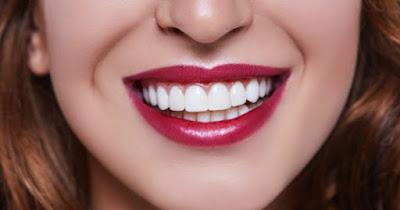ön diş estetik dolgusu ne kadar dayanır