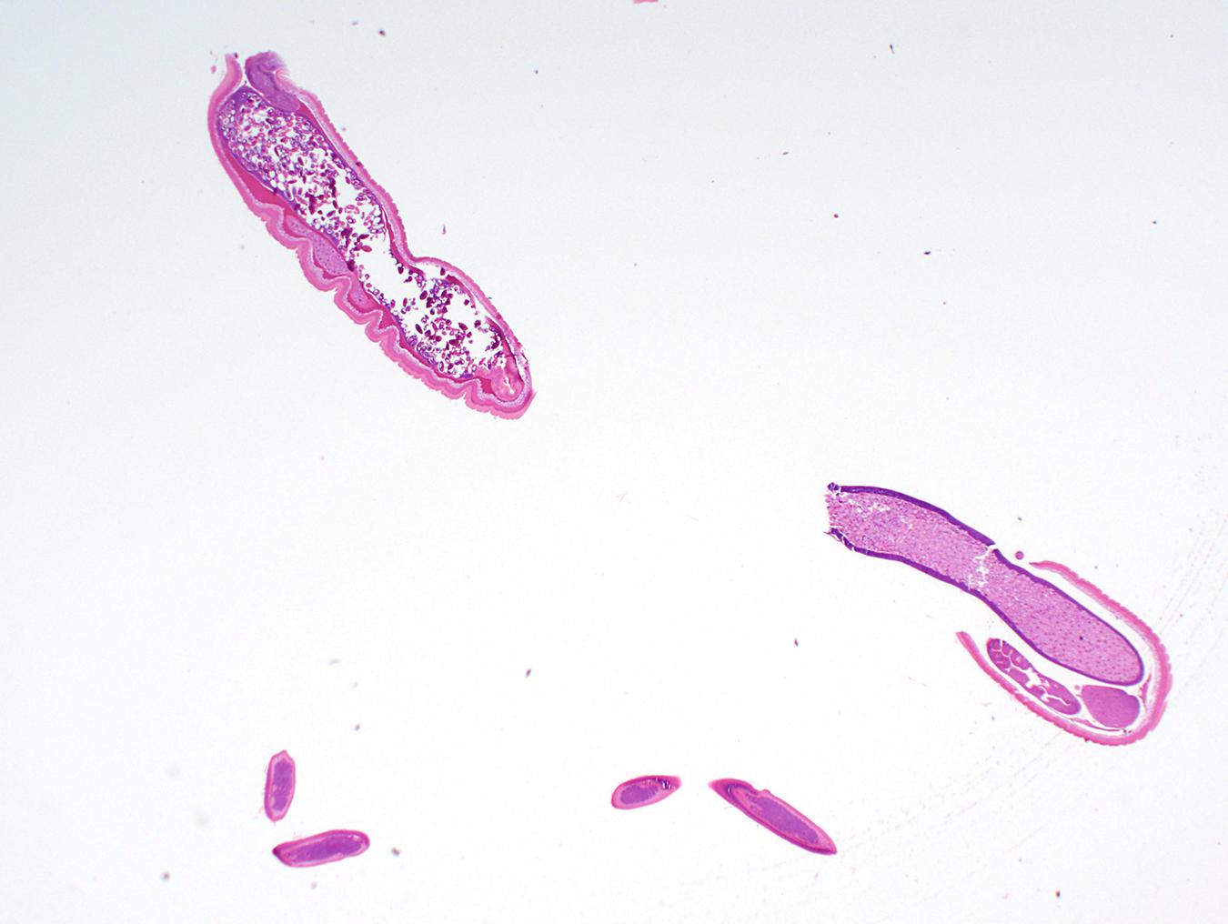 Archer - Beautiful Parasite by cfowler7-SFM on DeviantArt  |Beautiful Parasites