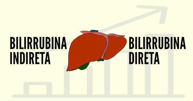 Bilirrubina indirecta - Health Library