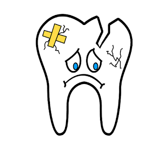 Sakit Gigi - Pengertian, Gejala, Penyebab, dan Cara Mengobati