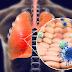 Οι καλύτερες τροφές για τους πνεύμονες εν μέσω της πανδημίας COVID-19