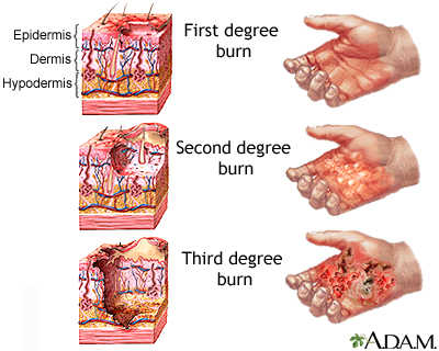 A burn is defined as an injury to the skin or other organic tissue caused by thermal trauma