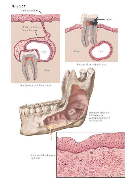 Cysts of Jaw and Oral Cavity, The ranula, Dermoid cysts, Facial cleft cysts,