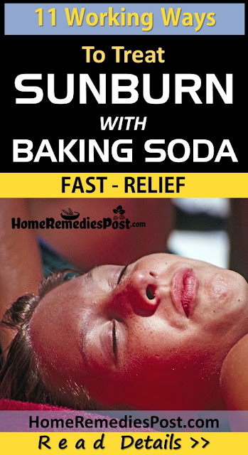baking soda for sunburn, How to Treat Sunburn with Baking Soda, Sunburn Treatment, how to get rid of sunburn, home remedies for sunburn