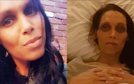 32-летняя женщина умерла от рака. Врач сказал ей, что для рака она еще слишком молода