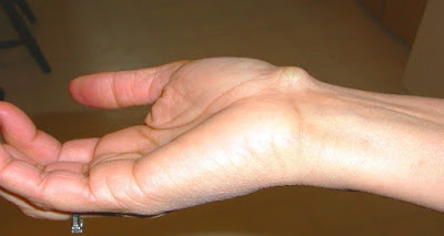 If You See This On The Wrist Of Your Hand, Stop What You're Doing Immediately And Call The Doctor. The Reason Is Scary