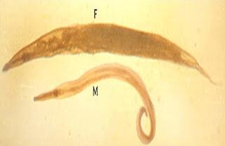 Oxyuris vermicularis