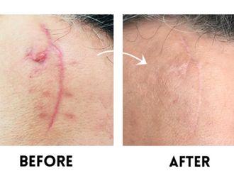 traitements à domicile pour réduire les cicatrices disgracieuses