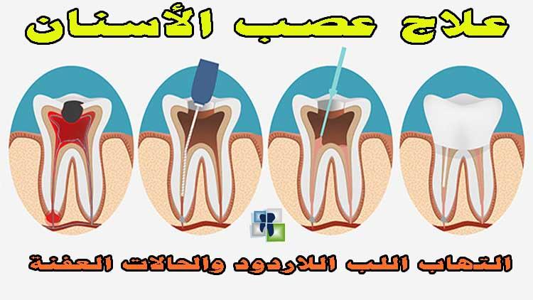 علاج عصب الأسنان في حال التهاب اللب اللاردود وفي حال تعفن اللب