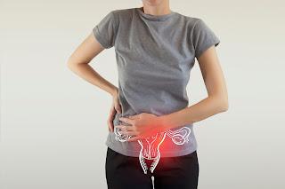 Câncer de ovário: mais de 70% dos casos são descobertos tardiamente