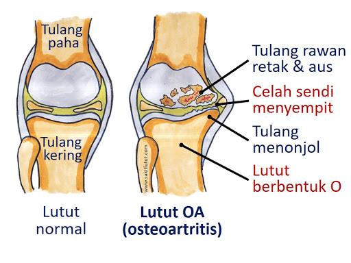 Pengobatan Osteoarthritis pada sendi lutut dengan Alga Series