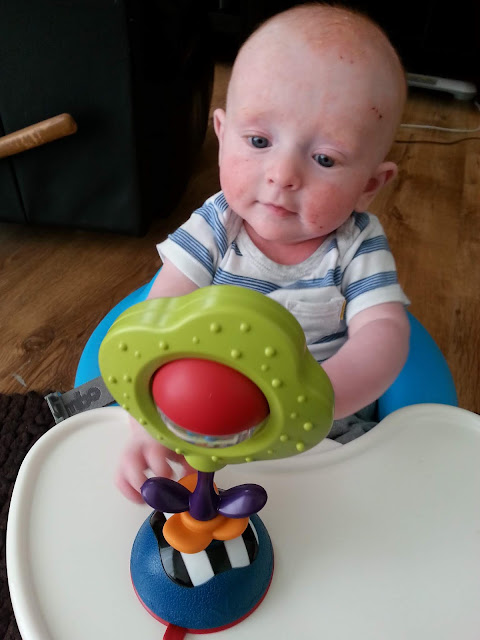 Baby sitting in a bumbo chair with a toy in front of him. His face shows sore, dry, eczema skin