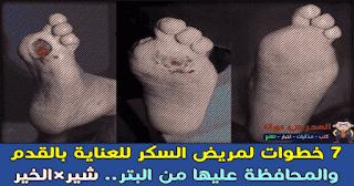 7 خطوات لمريض السكر للعناية بالقدم  والمحافظة عليها من البتر
