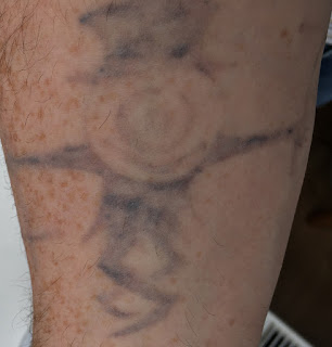 Tattoo fading from Picosure Laser Removal